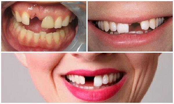 Trồng răng cửa bảo vệ sức khỏe và tạo thẩm mỹ cho hàm răng
