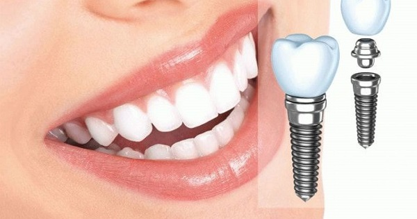 Trồng răng Impant ở Nha khoa Việt Anh mang lại vẻ đẹp và sức khỏe cho bệnh nhân