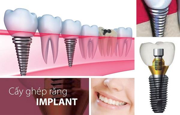 Mất răng cửa nên được bổ sung răng ngay với phương pháp trồng Implant