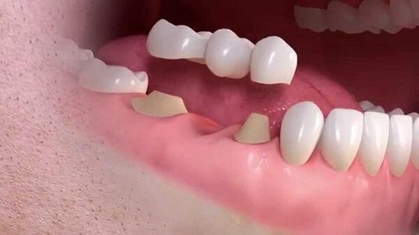 Làm cầu răng là phương pháp thay thế an toàn cho bà bầu hoặc mẹ đang cho con bú