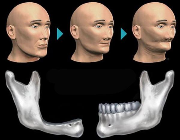 Trụ Implant được cắm vào giúp xương hàm không bị tiêu