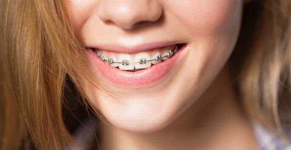 Trong quá trình niềng răng, răng lúc nào cũng nhạy cảm hơn thông thường