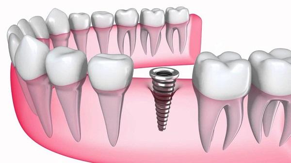 Phần trụ răng Implant sẽ dễ dàng cấy ghép hơn khi răng mới nhổ
