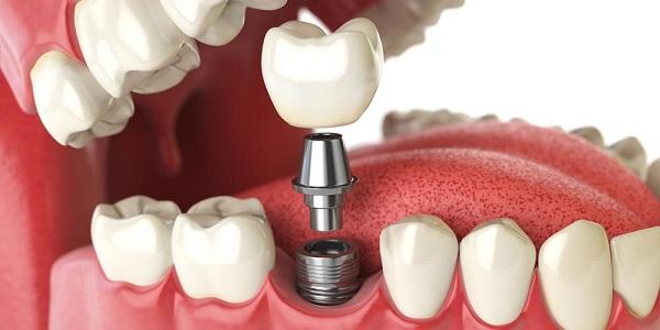 Trồng răng Implant loại nào tốt nhất?