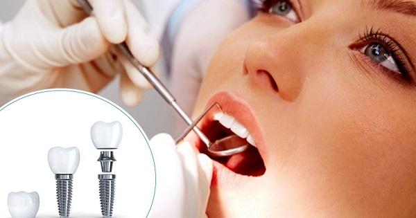Trồng răng Implant có thể làm ngay sau khi nhổ răng