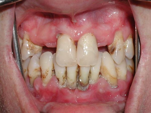 Viêm nha chu là nguyên nhân gây mất răng hàng đầu