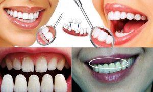 Răng bọc sứ cũng cần chăm sóc chu đáo như răng tự nhiên