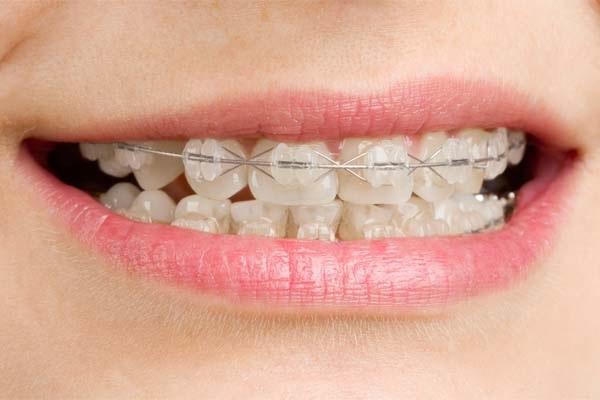 Niềng răng khắc phục hầu hết các trường hợp răng sai lệch hô, móm, khấp khểnh
