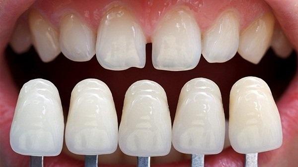Bọc răng sứ giúp khách hàng có hàm răng đều đẹp mà không tốn nhiều thời gian