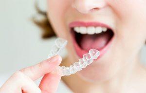 Niềng răng không mắc cài được coi là đỉnh cao của kỹ thuật chỉnh nha thẩm mĩ