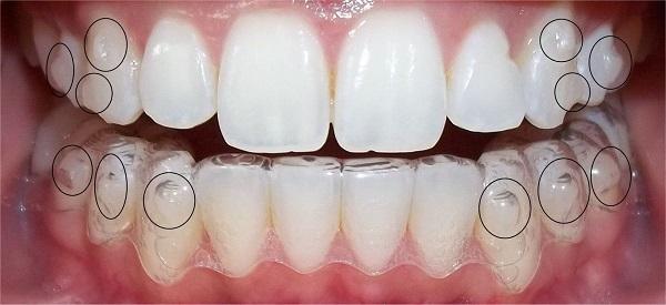 Niềng răng không mắc cài tại Nha khoa Việt Anh vượt trội về ưu điểm