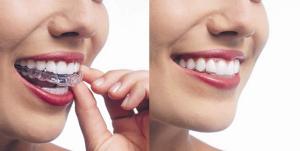Niềng răng không mắc cài vẫn cần phải chăm sóc răng miệng tốt