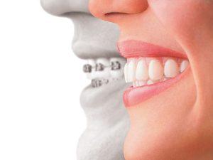 Sau thời gian dài chờ đợi, ai cũng mong muốn sở hữu hàm răng đều, đẹp như ý