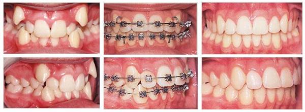 Hình ảnh trước – sau khi niềng răng