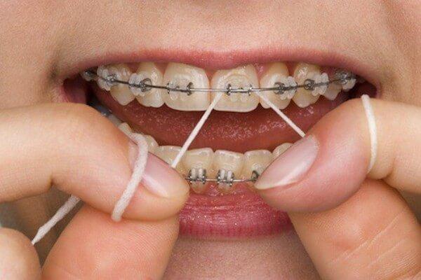 Nên dùng chỉ nha khoa đúng cách để loại bỏ hết vi khuẩn gây mầm bệnh cho răng