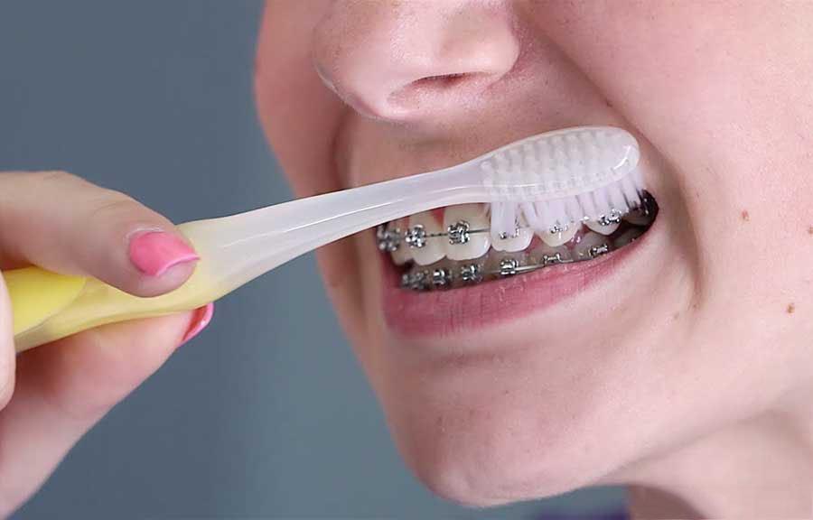 Sử dụng bàn chải dành riêng cho những người thực hiện niềng răng