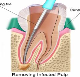 Quy trình trám răng lấy tủy và bọc răng sứ