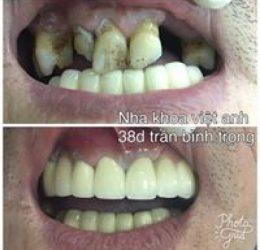 Trồng Răng sứ Titan thẩm mỹ cao cấp