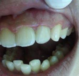 Răng sứ mặt dán