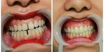 Hỏi đáp: Răng thưa có cần chỉnh sửa không?