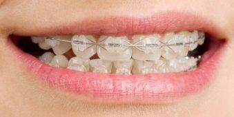 Bọc răng sứ có thể niềng răng không