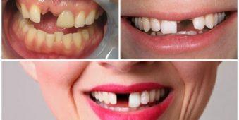 Mất răng cửa có nên trồng răng Implant?
