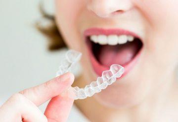 Niềng răng không mắc cài là gì – Có hiệu quả không