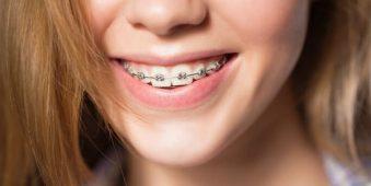 Hai loại kem đánh răng nên dùng sau niềng răng
