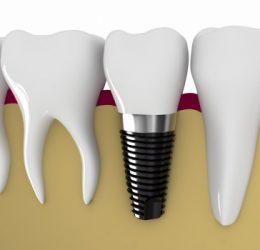 Video mô phỏng trồng răng Implant