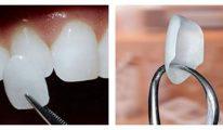 Mặt dán Veneer sứ – Phục hình thẩm mỹ bảo tồn răng thật