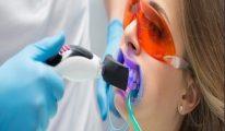 Muốn tẩy trắng răng hiệu quả cần nhớ 2 điều này