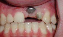 Những rủi ro khó lường trong quá trình trồng răng Implant