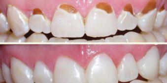 Hỏi đáp: Miếng trám răng bị hỏng phải làm sao?