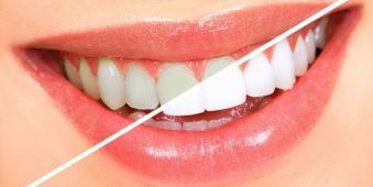 Tẩy trắng răng có phải ai cũng thực hiện được?
