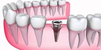 Vừa nhổ răng xong có được trồng răng Implant không