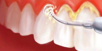 Hỏi đáp: Có nên lấy cao răng khi đang có thai?